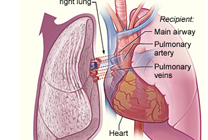 lung-tr